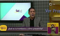 ¿Qué es la Trombosis y cómo prevenirla? Ver Video